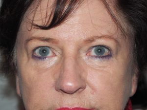 After upper lid blepharoplasty and brow lift