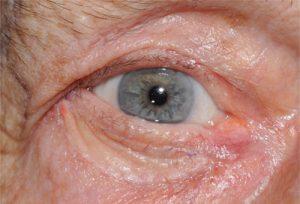 One week after ectropion repair with skin grafting