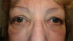 After right ptosis surgery.