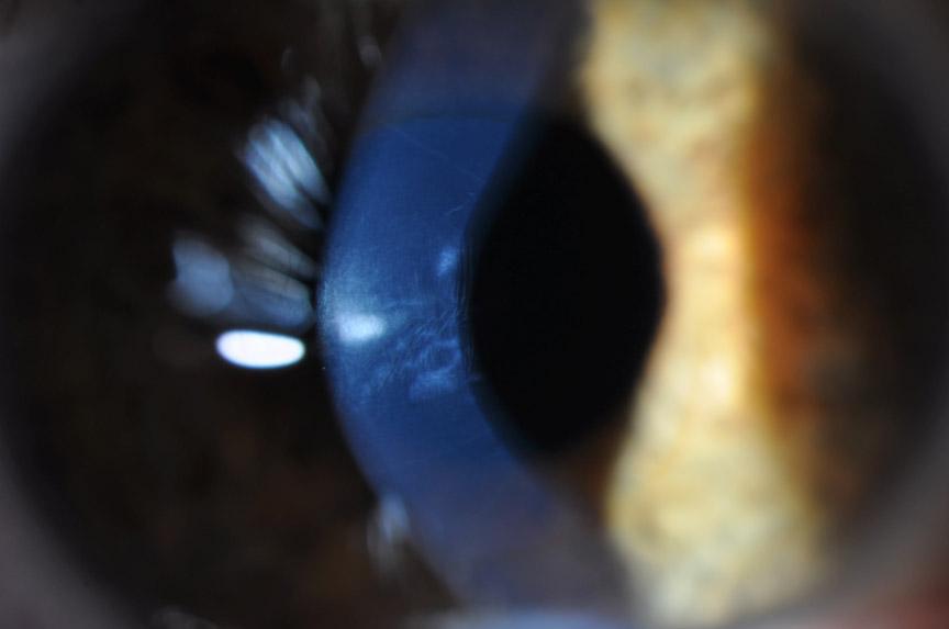 Corneal Surgery Dr Tom Cunneen Eye Surgery Perth