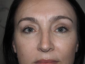 Upper lid blepharoplasty and lacrimal gland respositioning
