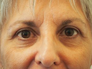 6 weeks after upper lid blepharoplasty and brow lift