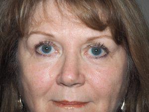 6 weeks after upper lid blepharoplasty
