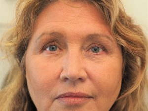 After upper and lower lid blepharoplasty and brow lift