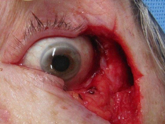 eyelid tumour