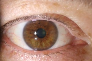 After pterygium excision and conjunctival graft